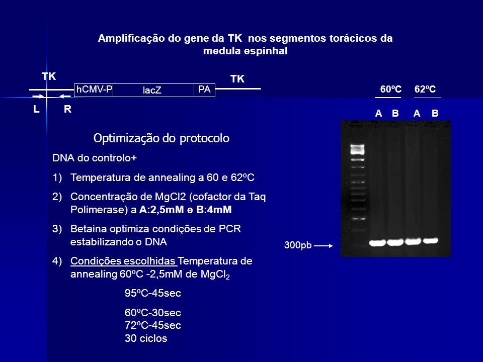 Amplificação do gene da TK nos segmentos torácicos da medula espinhal