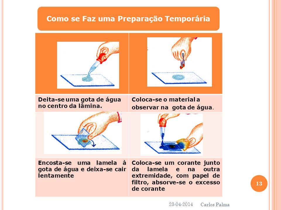 Como se Faz uma Preparação Temporária