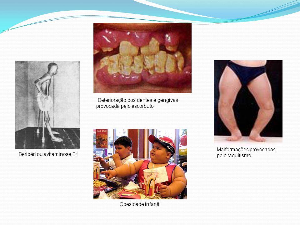 Deterioração dos dentes e gengivas provocada pelo escorbuto