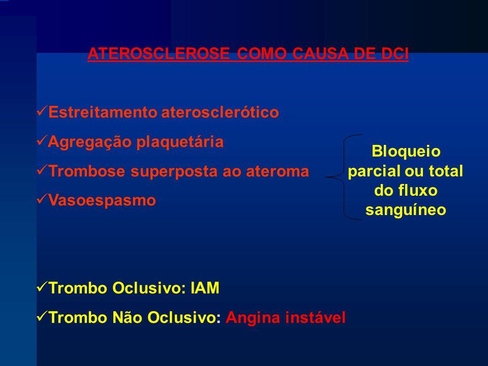 ATEROSCLEROSE COMO CAUSA DE DCI