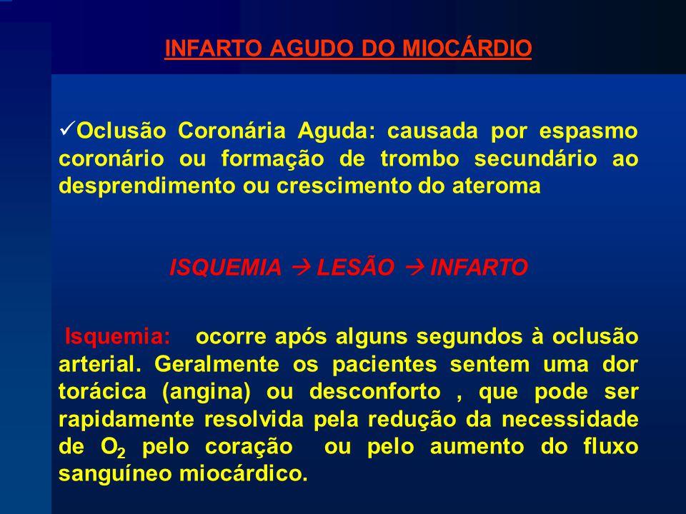 INFARTO AGUDO DO MIOCÁRDIO ISQUEMIA  LESÃO  INFARTO