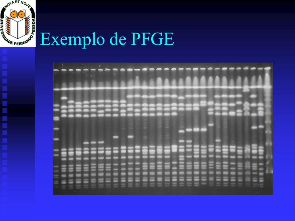 Exemplo de PFGE