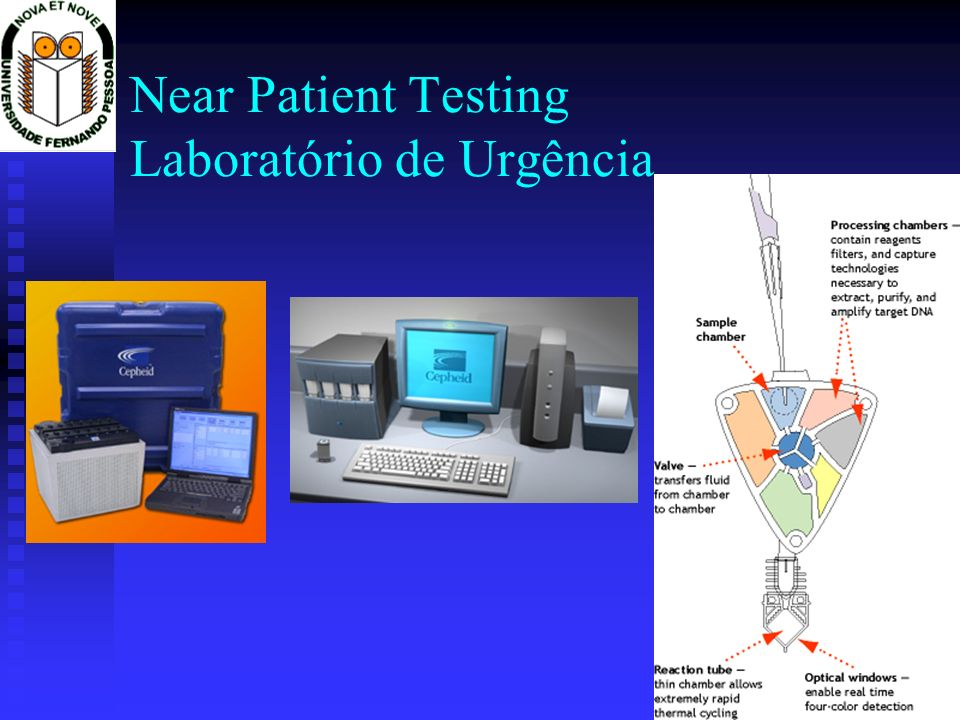 Near Patient Testing Laboratório de Urgência