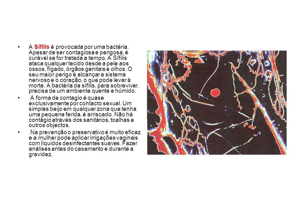 A Sífilis é provocada por uma bactéria