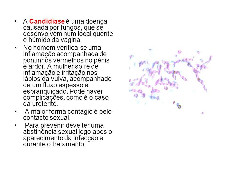 A Candidíase é uma doença causada por fungos, que se desenvolvem num local quente e húmido da vagina.