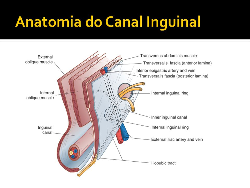 Excepcional Anatomía Anillo Inguinal Inspiración - Anatomía de Las ...