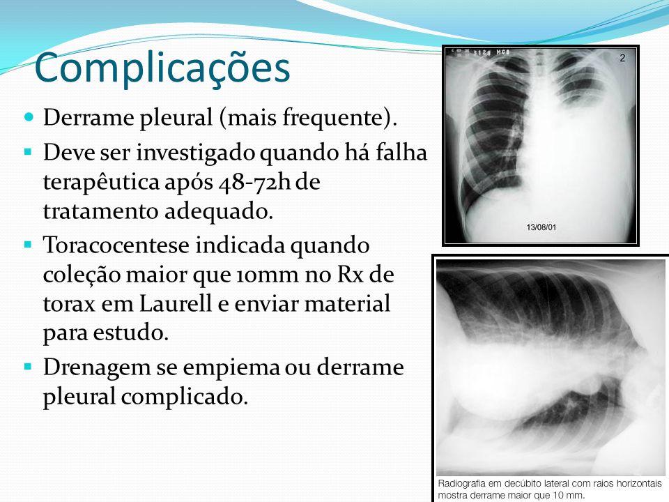 Complicações Derrame pleural (mais frequente).