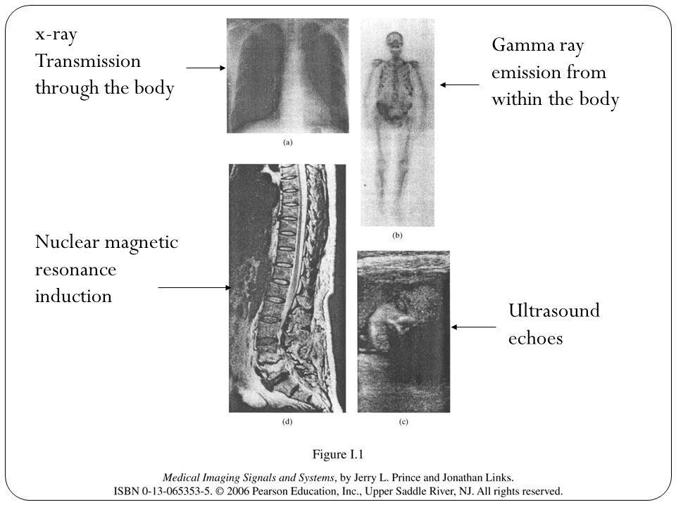 x-ray Transmission through the body. Gamma ray emission from within the body. Nuclear magnetic resonance induction.
