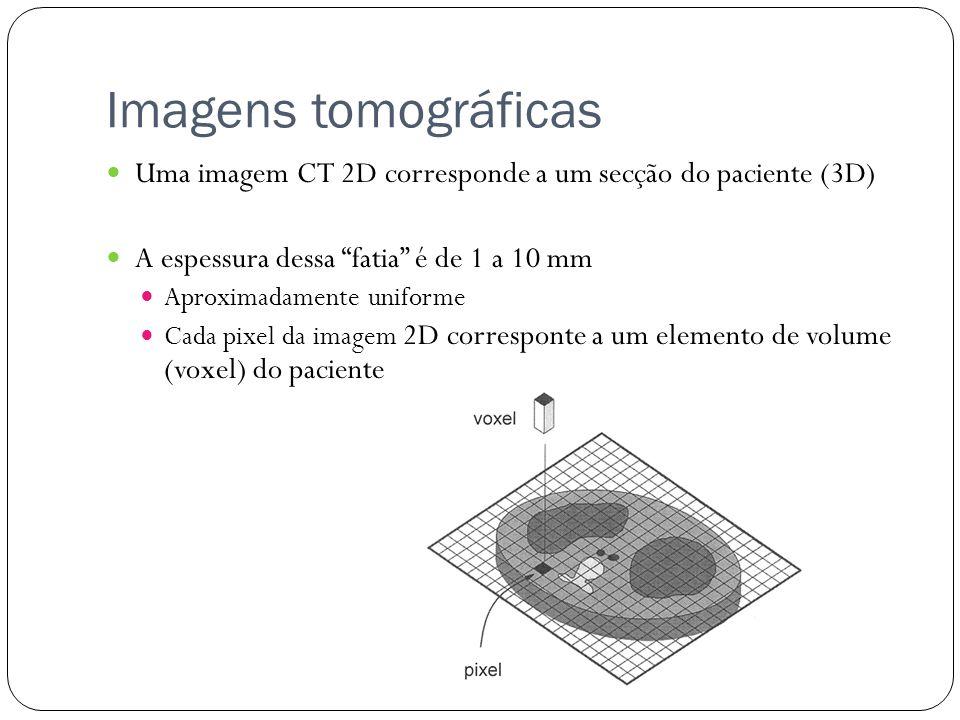 Imagens tomográficas Uma imagem CT 2D corresponde a um secção do paciente (3D) A espessura dessa fatia é de 1 a 10 mm.