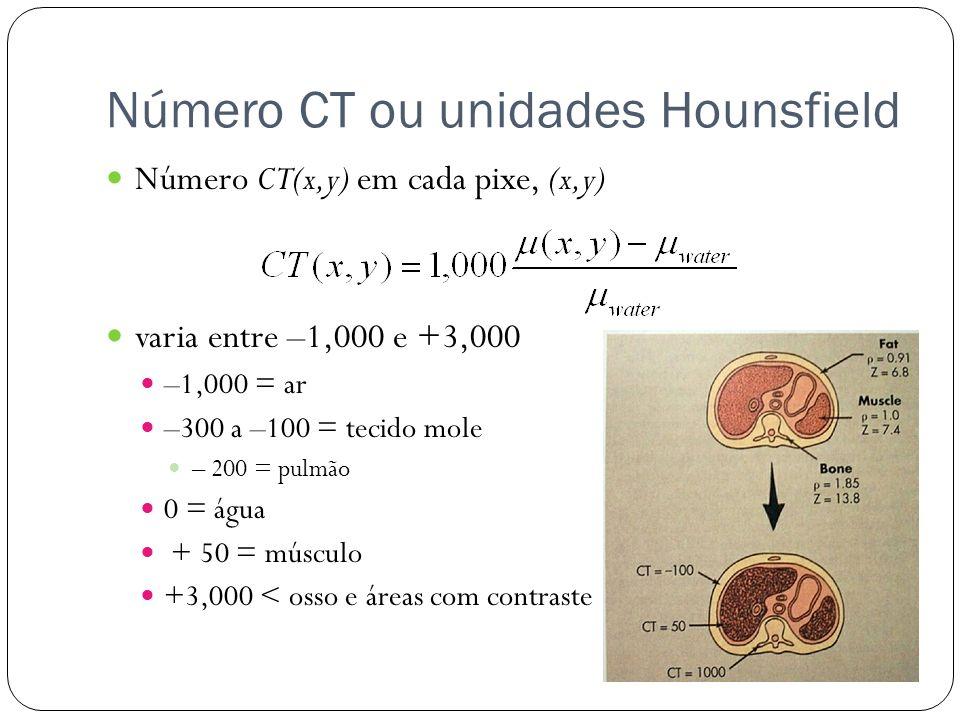 Número CT ou unidades Hounsfield