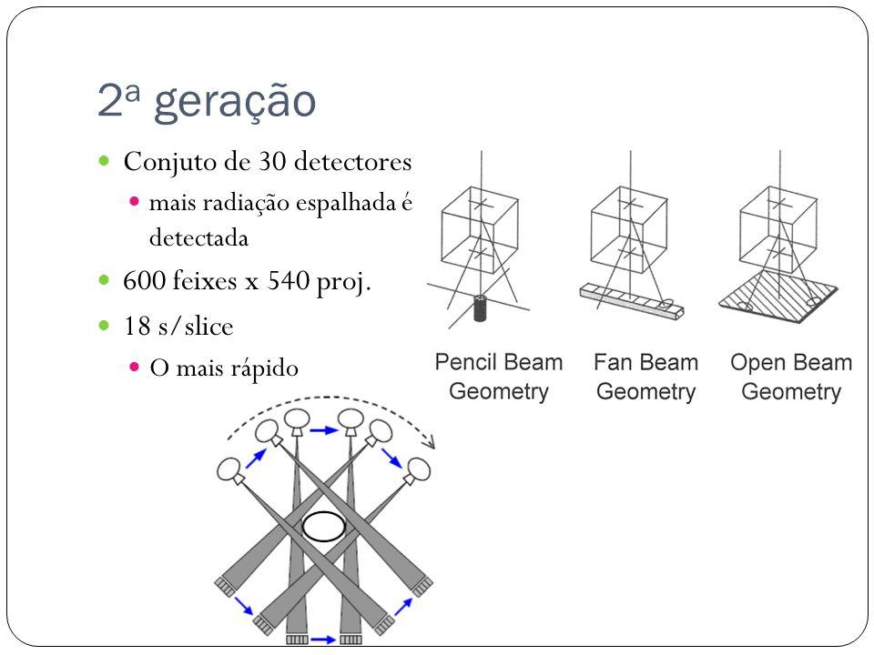 2a geração Conjuto de 30 detectores 600 feixes x 540 proj. 18 s/slice