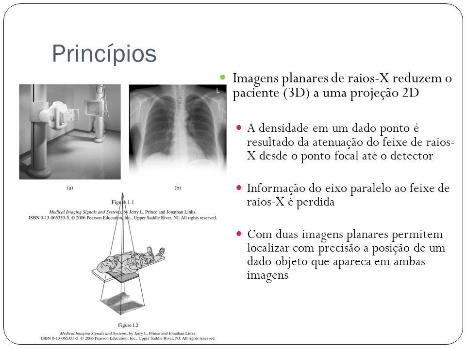 Princípios Imagens planares de raios-X reduzem o paciente (3D) a uma projeção 2D.