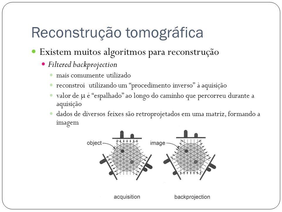 Reconstrução tomográfica