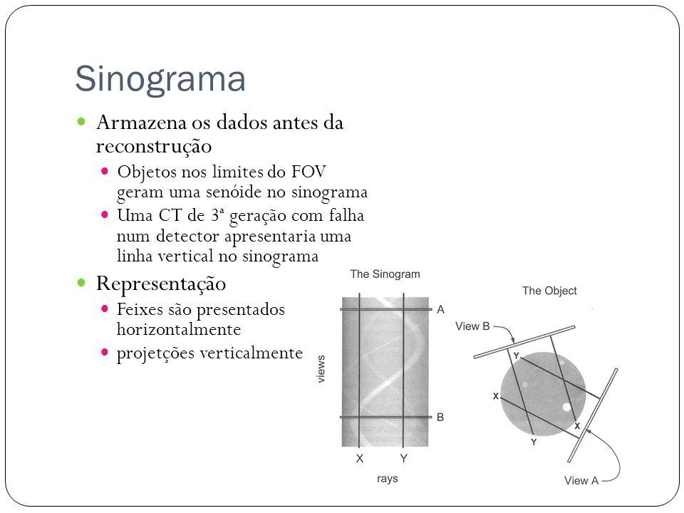 Sinograma Armazena os dados antes da reconstrução Representação