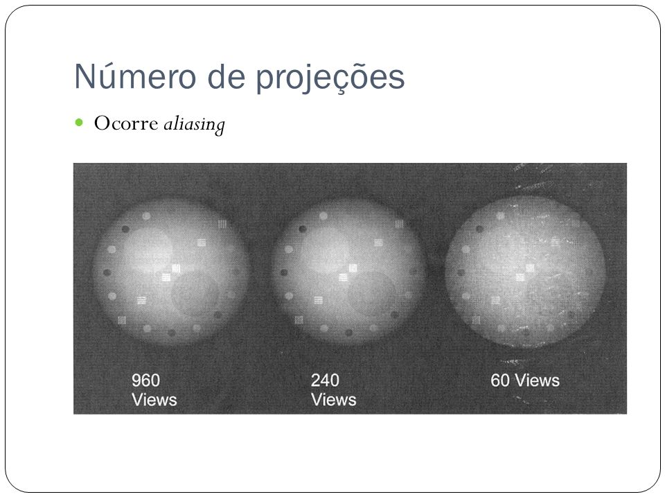 Número de projeções Ocorre aliasing