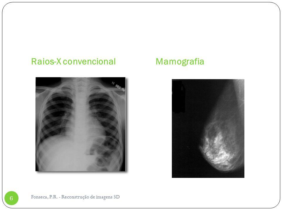 Raios-X convencional Mamografia