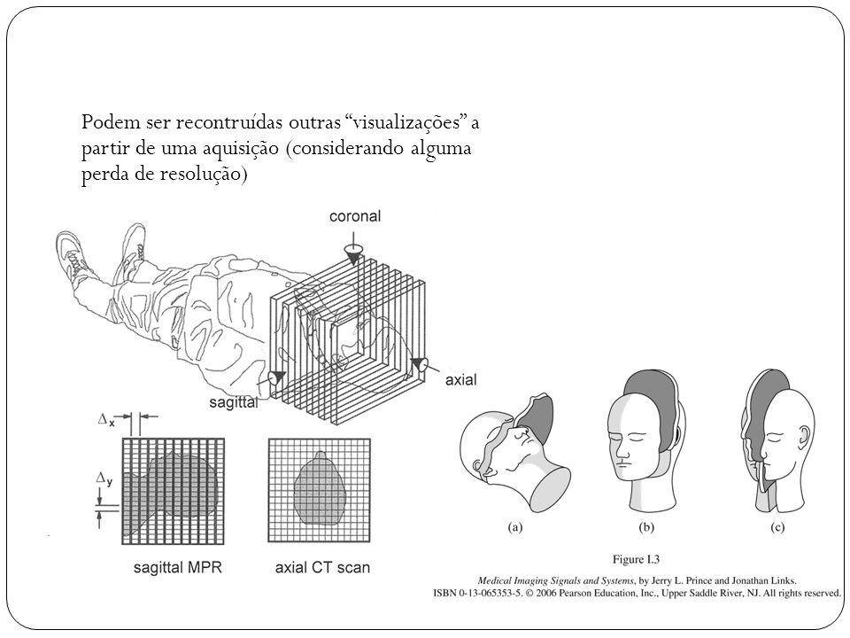 Podem ser recontruídas outras visualizações a partir de uma aquisição (considerando alguma perda de resolução)
