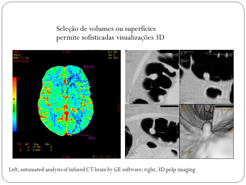 Seleção de volumes ou superfícies permite sofisticadas visualizações 3D
