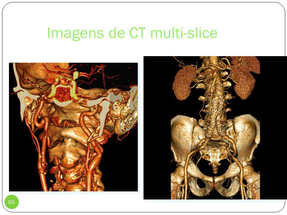 Imagens de CT multi-slice
