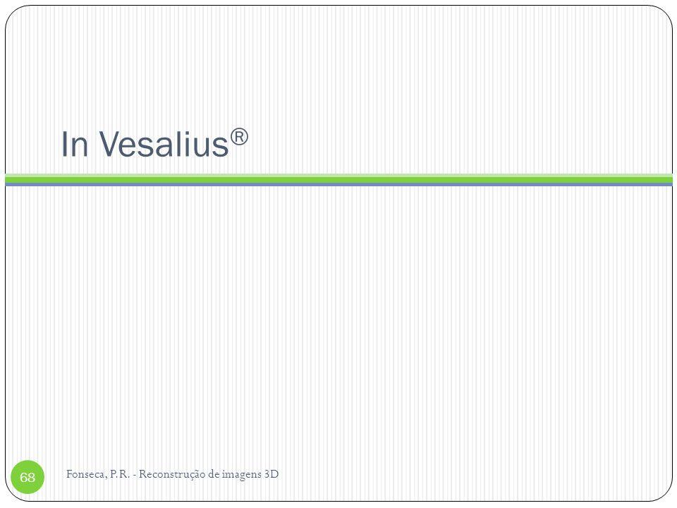 In Vesalius® Fonseca, P.R. - Reconstrução de imagens 3D