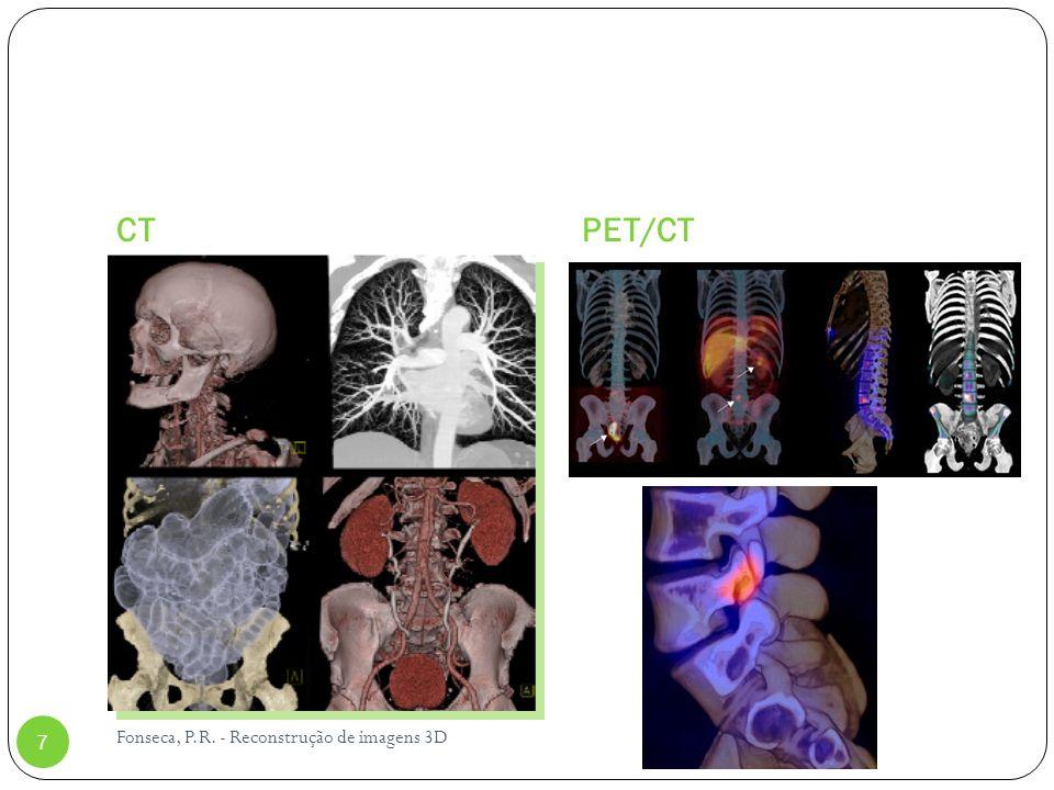 CT PET/CT Fonseca, P.R. - Reconstrução de imagens 3D