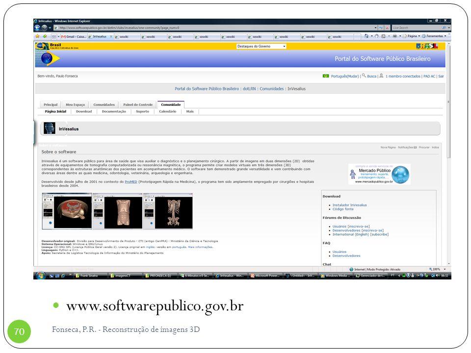 www.softwarepublico.gov.br Fonseca, P.R. - Reconstrução de imagens 3D