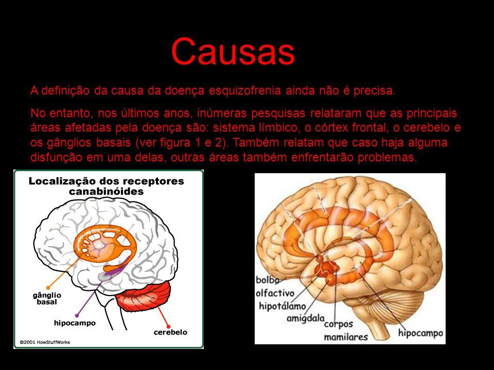 Causas A definição da causa da doença esquizofrenia ainda não é precisa.