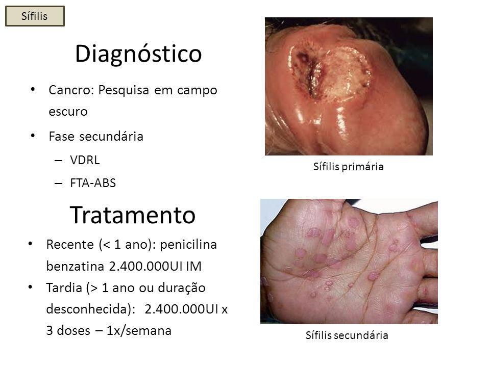 Cancro mole ou bubo fotos 29