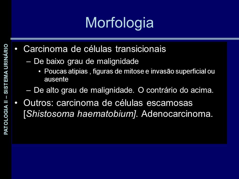 Morfologia Carcinoma de células transicionais