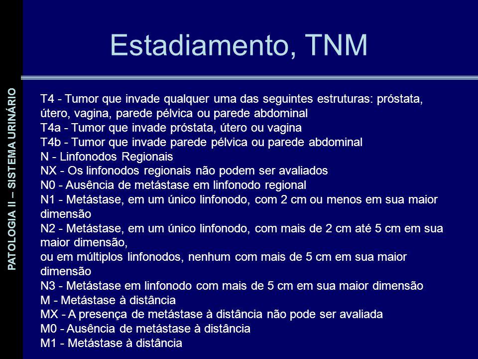 Estadiamento, TNM T4 - Tumor que invade qualquer uma das seguintes estruturas: próstata, útero, vagina, parede pélvica ou parede abdominal.