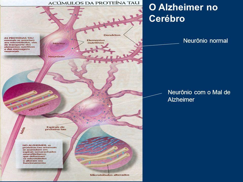 O Alzheimer no Cerébro Neurônio normal Neurônio com o Mal de Alzheimer