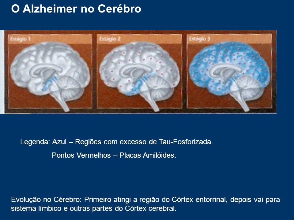 O Alzheimer no CerébroLegenda: Azul – Regiões com excesso de Tau-Fosforizada. Pontos Vermelhos – Placas Amilóides.