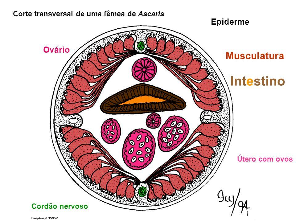 Corte transversal de uma fêmea de Ascaris