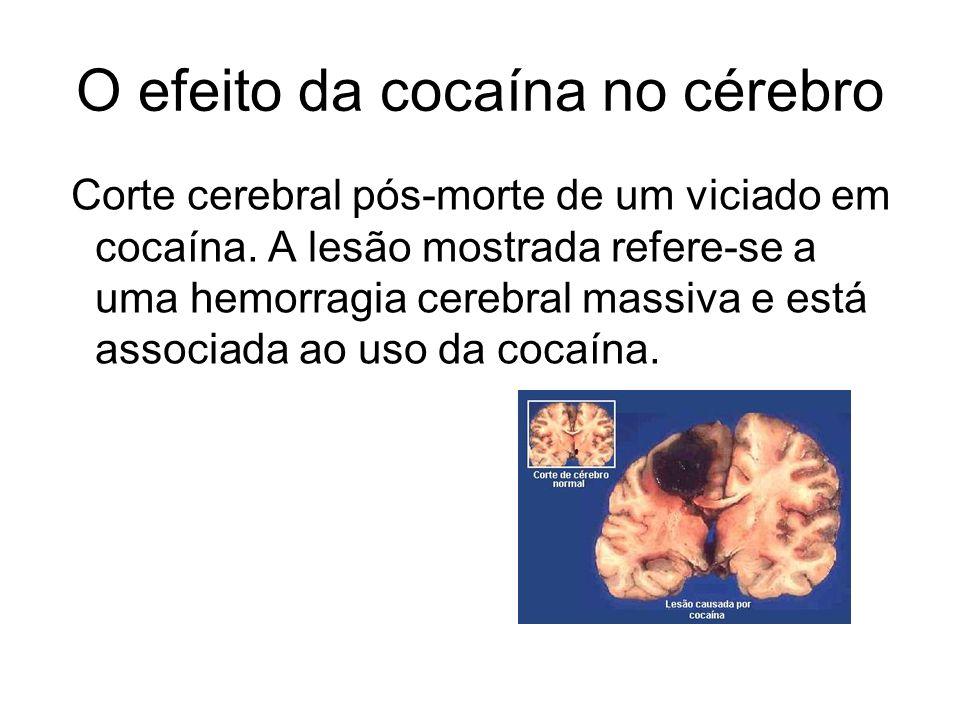 O efeito da cocaína no cérebro