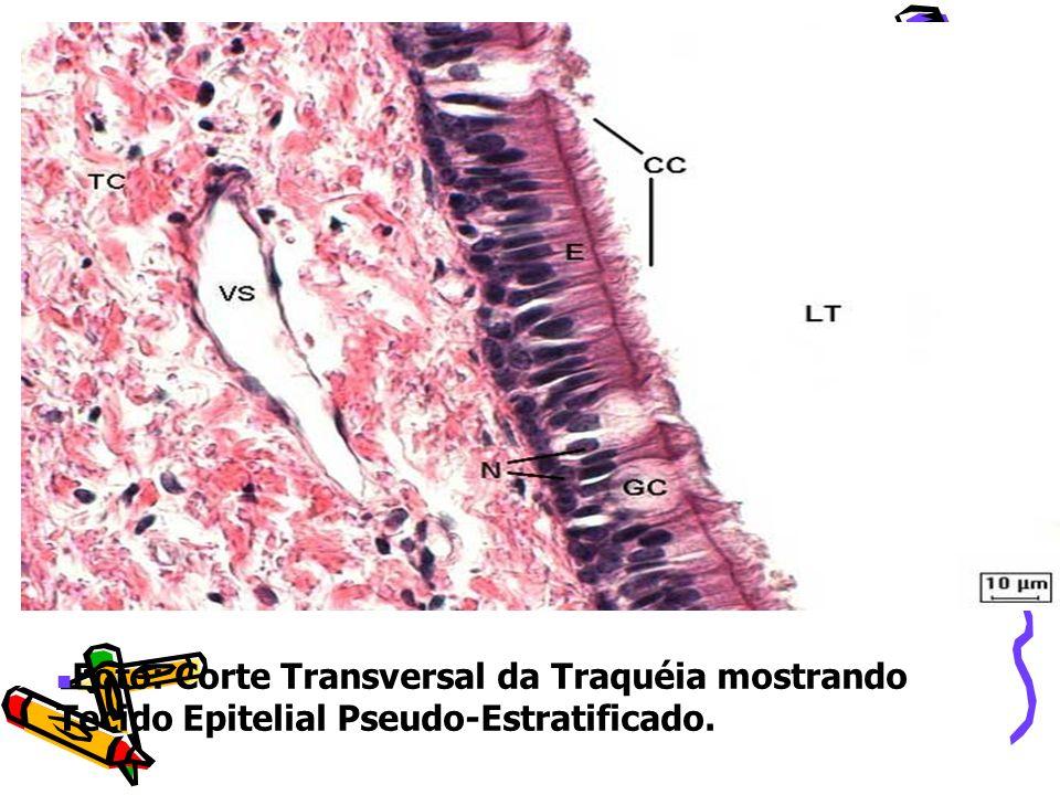 Foto: Corte Transversal da Traquéia mostrando Tecido Epitelial Pseudo-Estratificado.