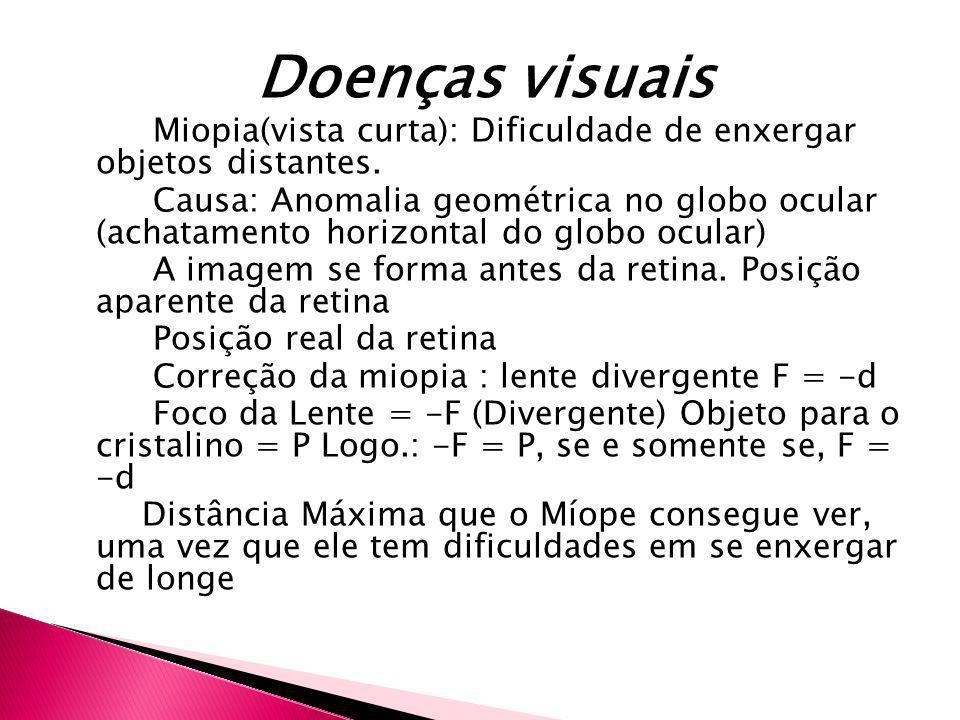 Doenças visuaisMiopia(vista curta): Dificuldade de enxergar objetos distantes.
