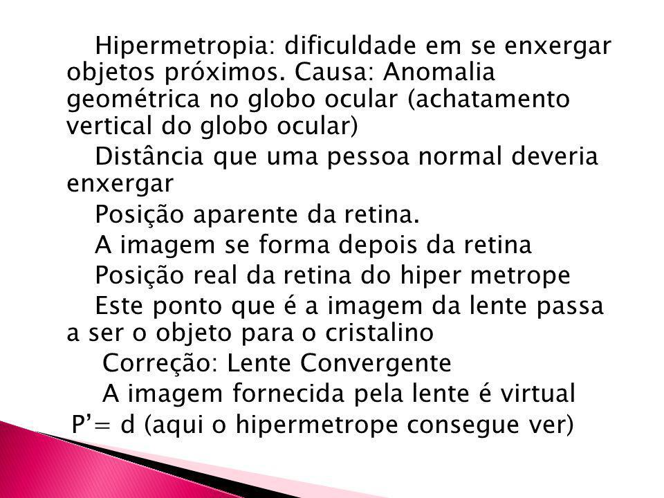 Hipermetropia: dificuldade em se enxergar objetos próximos