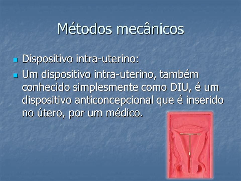 Métodos mecânicos Dispositivo intra-uterino: