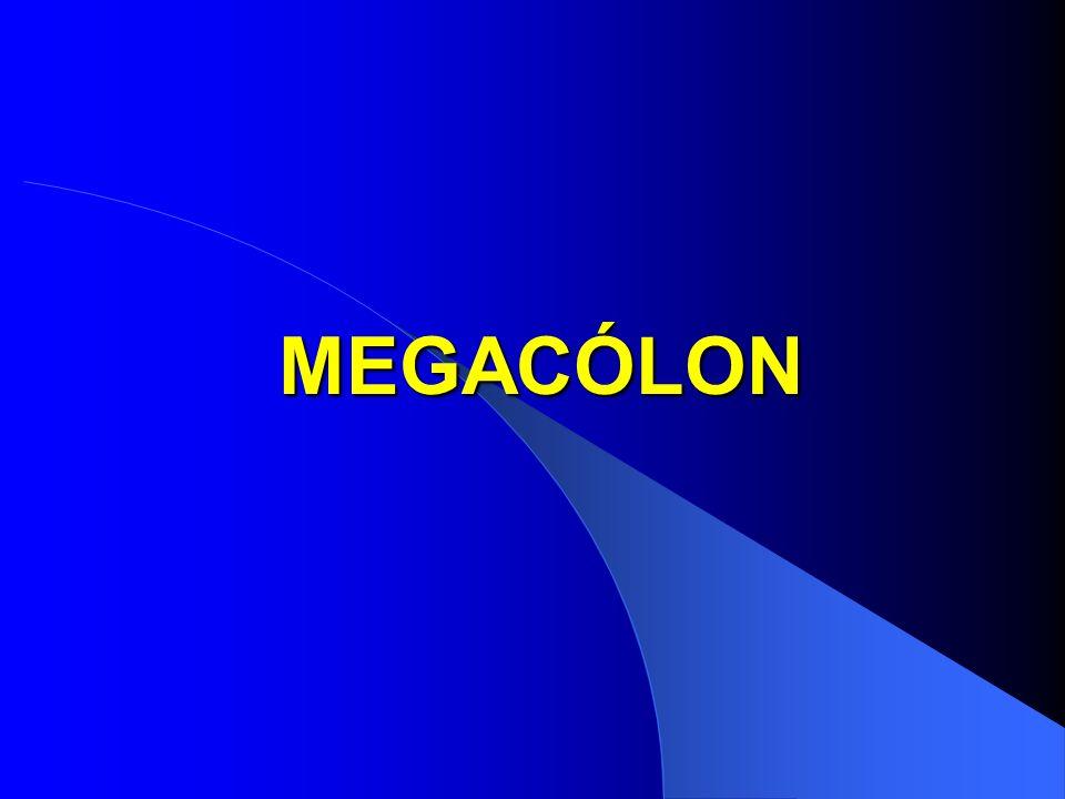 MEGACÓLON