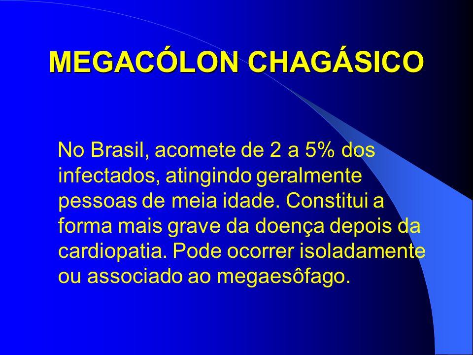MEGACÓLON CHAGÁSICO