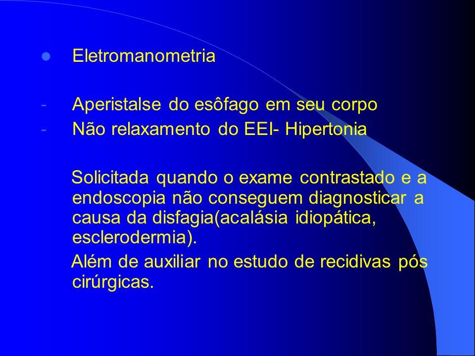 Eletromanometria Aperistalse do esôfago em seu corpo. Não relaxamento do EEI- Hipertonia.