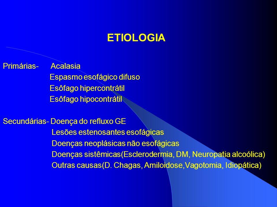 ETIOLOGIA Primárias- Acalasia Espasmo esofágico difuso