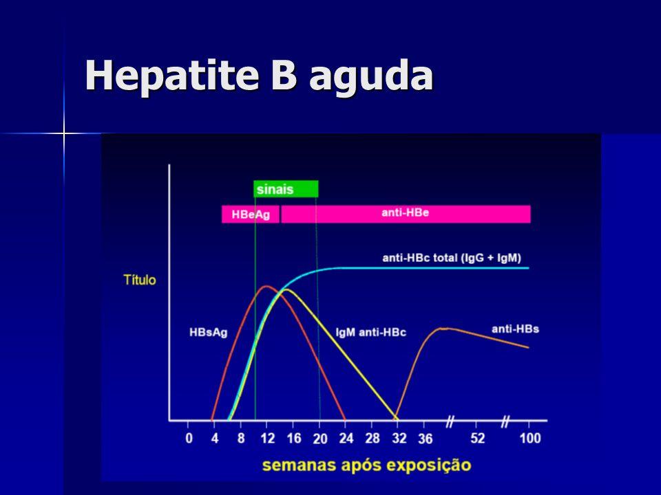 Hepatite B aguda