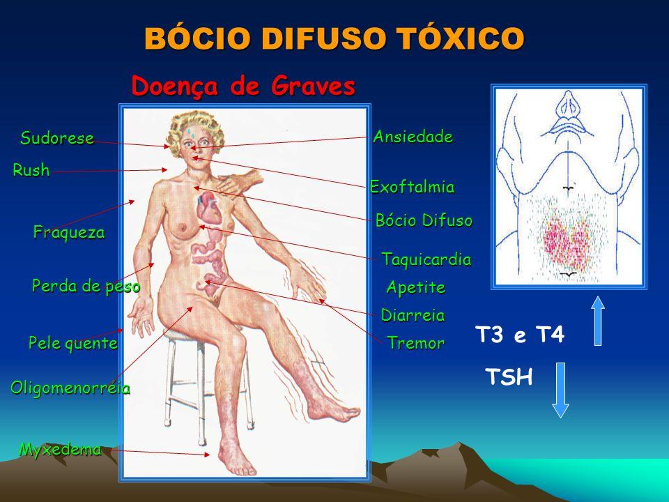 BÓCIO DIFUSO TÓXICO Doença de Graves T3 e T4 TSH Sudorese Ansiedade
