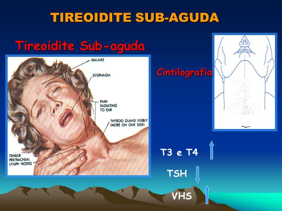 TIREOIDITE SUB-AGUDA Tireoidite Sub-aguda Cintilografia T3 e T4 TSH