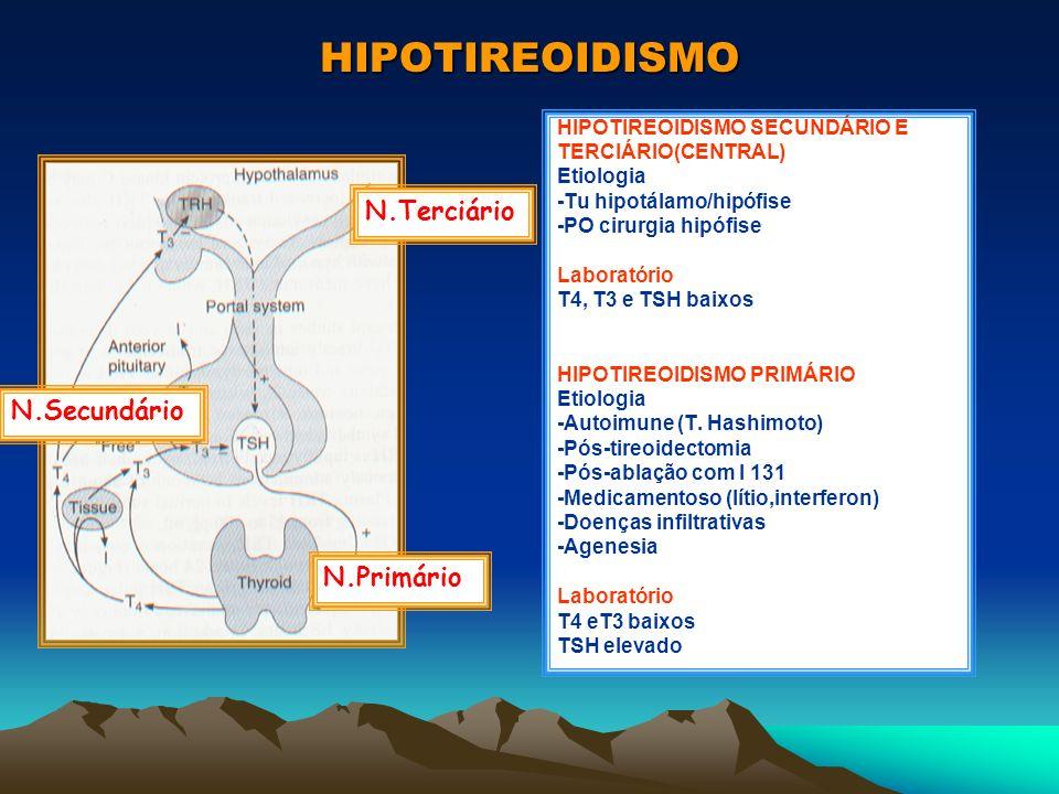 HIPOTIREOIDISMO N.Terciário N.Secundário N.Primário