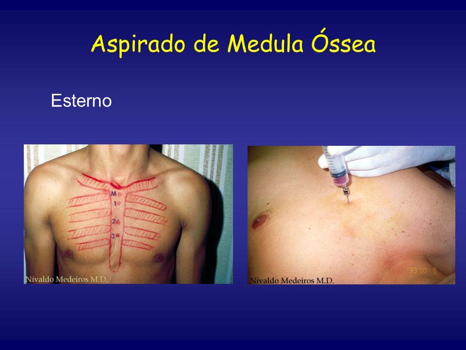 Aspirado de Medula Óssea