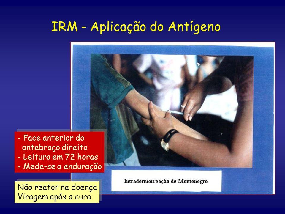 IRM - Aplicação do Antígeno