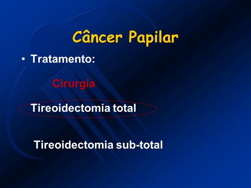 Câncer Papilar Tratamento: Cirurgia Tireoidectomia total
