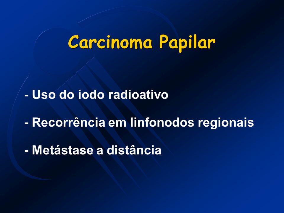 Carcinoma Papilar - Uso do iodo radioativo